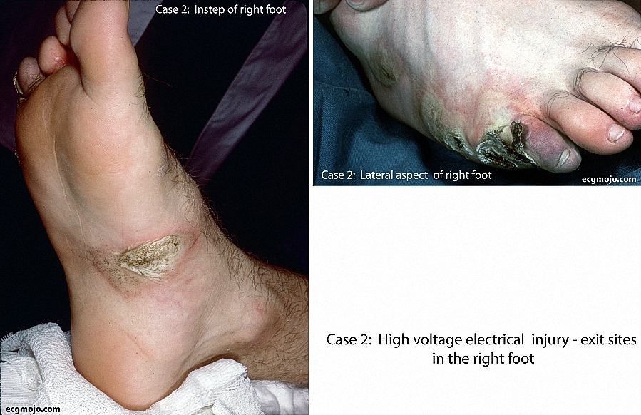 Figure 2. Medial and lateral aspects of the right foot showing exit burns