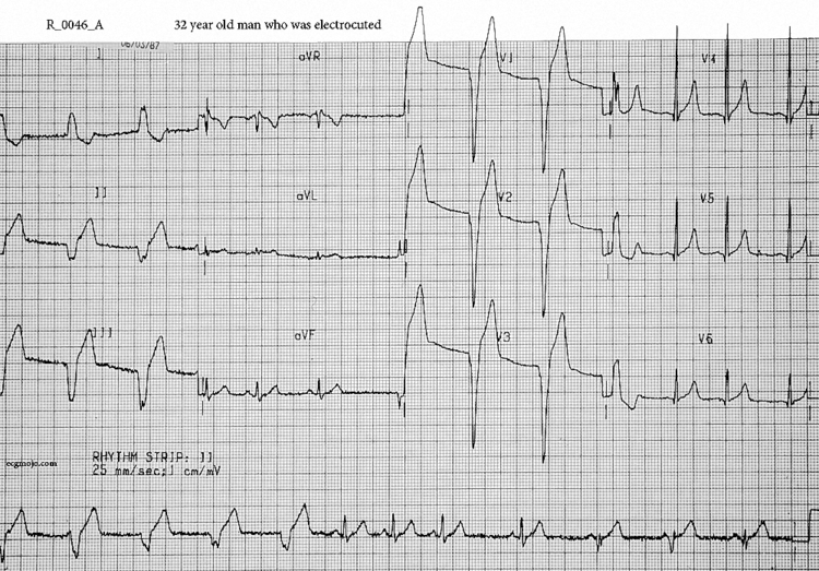 Figure 3. Electrocardiograph of Case 2 taken soon arrival at the ED