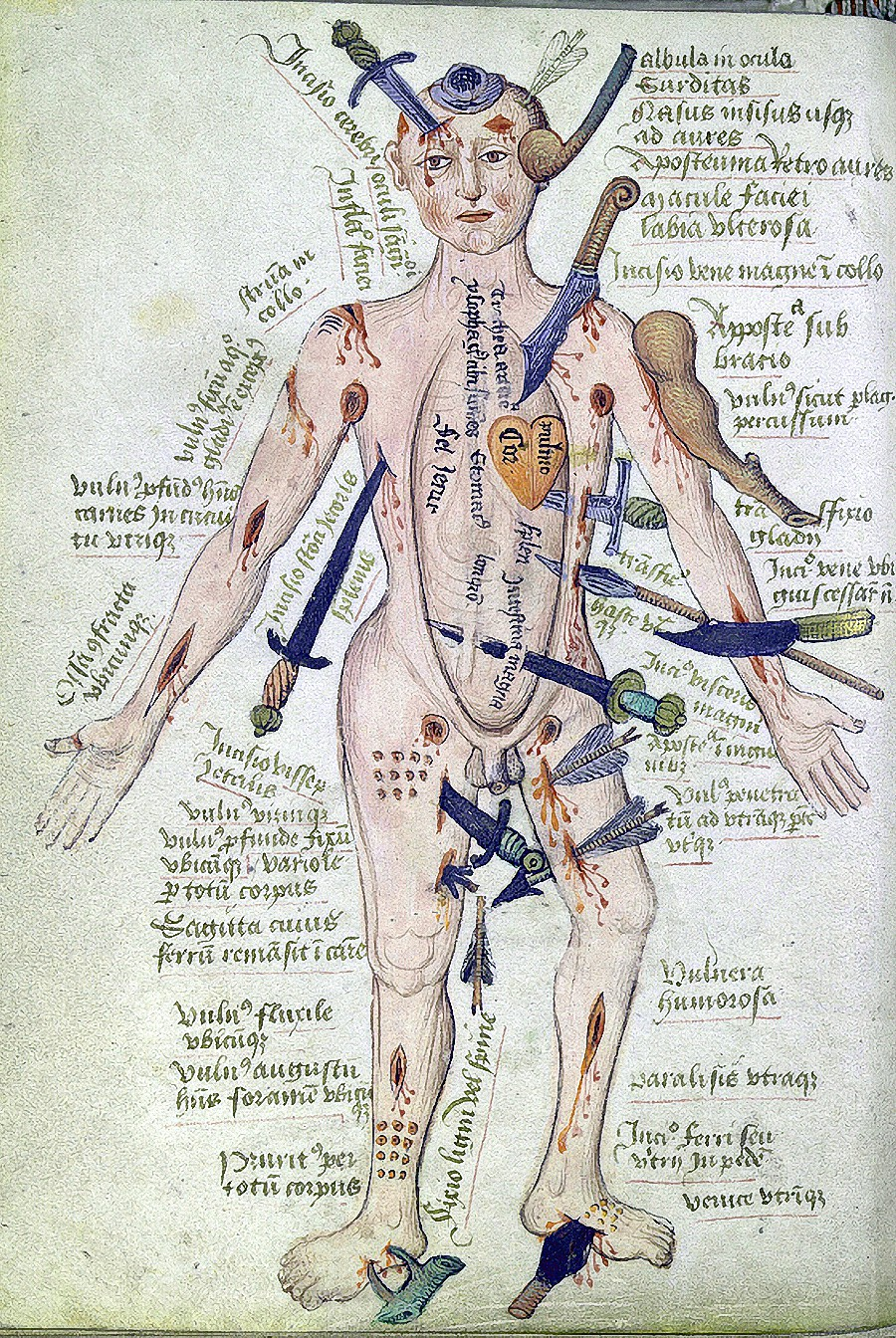 Figure 1: The Wounded Man. Source: publicdomainreview.org