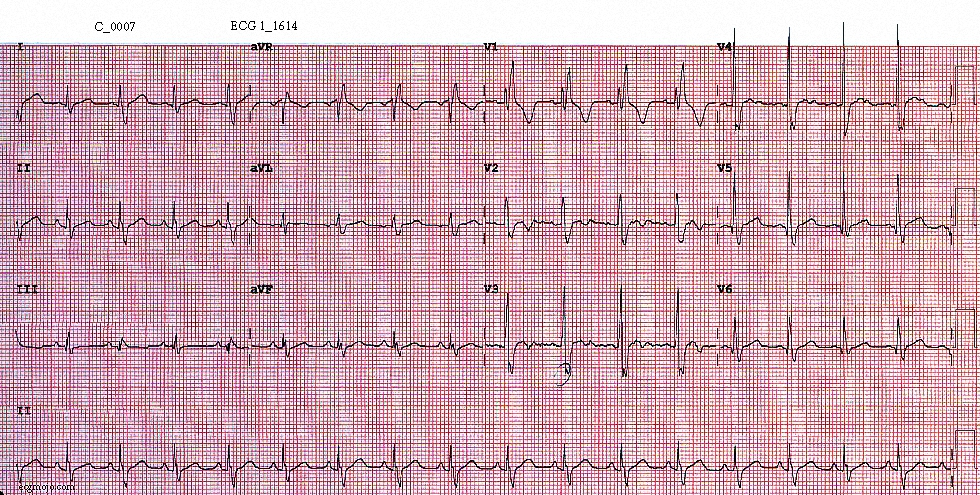 Figure 5. ECG taken at 1614 shows sinus tachycardia (heart rate of about 101 beats per minute), right bundle branch block, electrical alternans - best seen in Leads I to III (the amplitude of the complexes varies from beat to beat), and slight ST elevation and T wave inversion in Leads V2 - V3.
