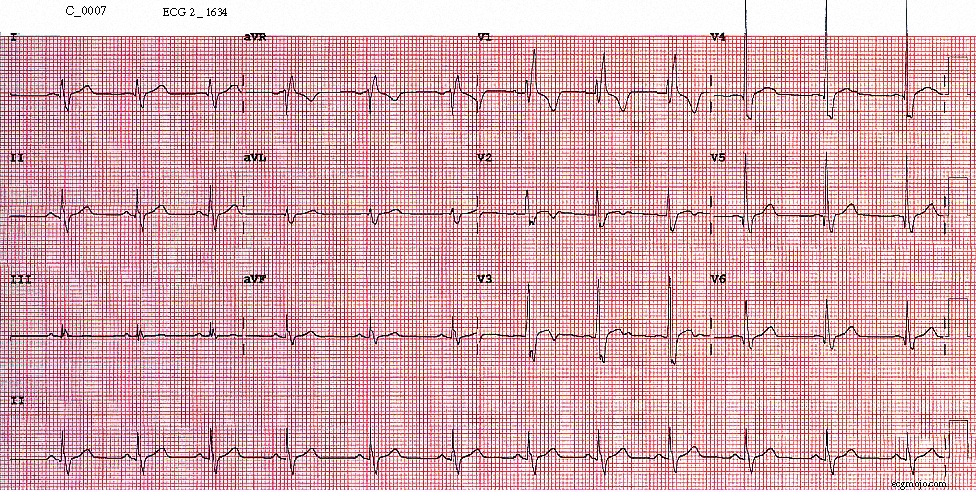 Figure 6.  ECG taken at 1634 shows sinus rhythm with a heart rate of about 74 beats per minute. The right bundle branch block persists, there is slight ST elevation in Leads V2 to V4 and there is T wave inversion in Leads V2 and Lead V3