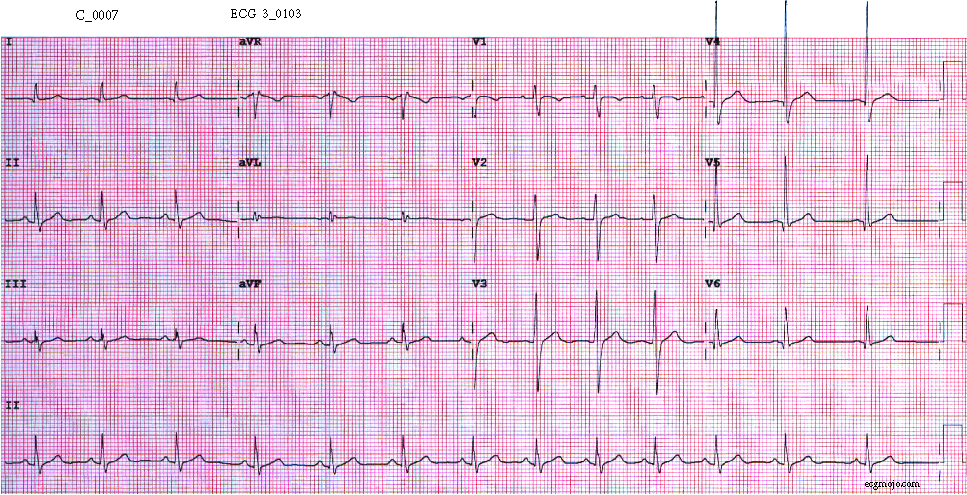 Figure 7. This ECG was taken about 9 hours after the first ECG. Sinus arrhythmia is present, and the heart rate is about 82 beats per minute. The right bundle branch block pattern is no longer present, and the QRS complexes have a normal shape.