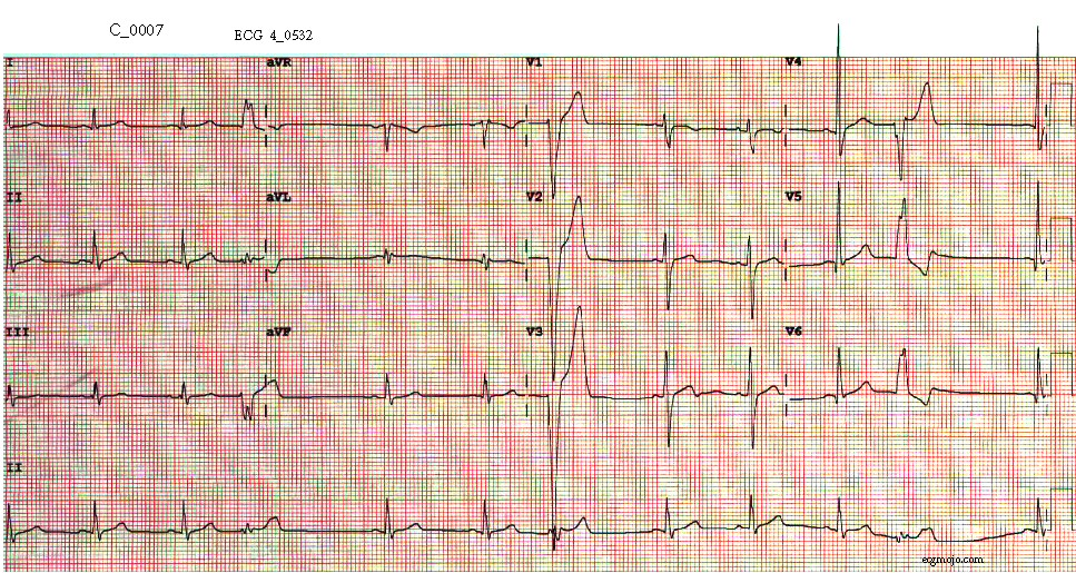 Figure 8. The ECG shows normal sinus rhythm with a heart rate of about 70 beats per minute and normal QRS morphology. Occasional ventricular ectopic beats are present.
