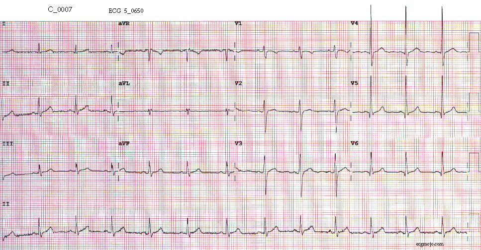 Figure 9. The ECG tracing is normal.