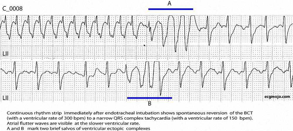 Figure 4. Rhythm strip showing reversion of the BCTto a narrower QRS complex rhythm with visible atrial flutter waves.