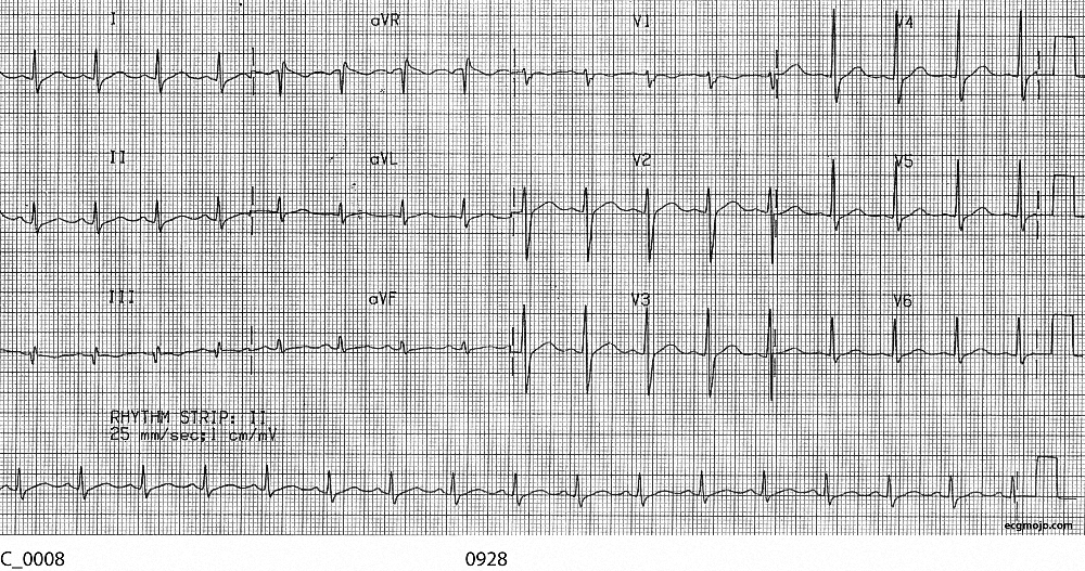 Figure 6. Sinus rhythm is present, with a HR of about 100 bpm. The J point depression and the ST depression changes have resolved.
