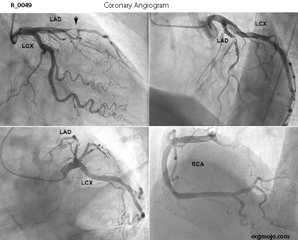 Figure 5 - Coronary Angiogram Showing 99% Stenosis of the LAD
