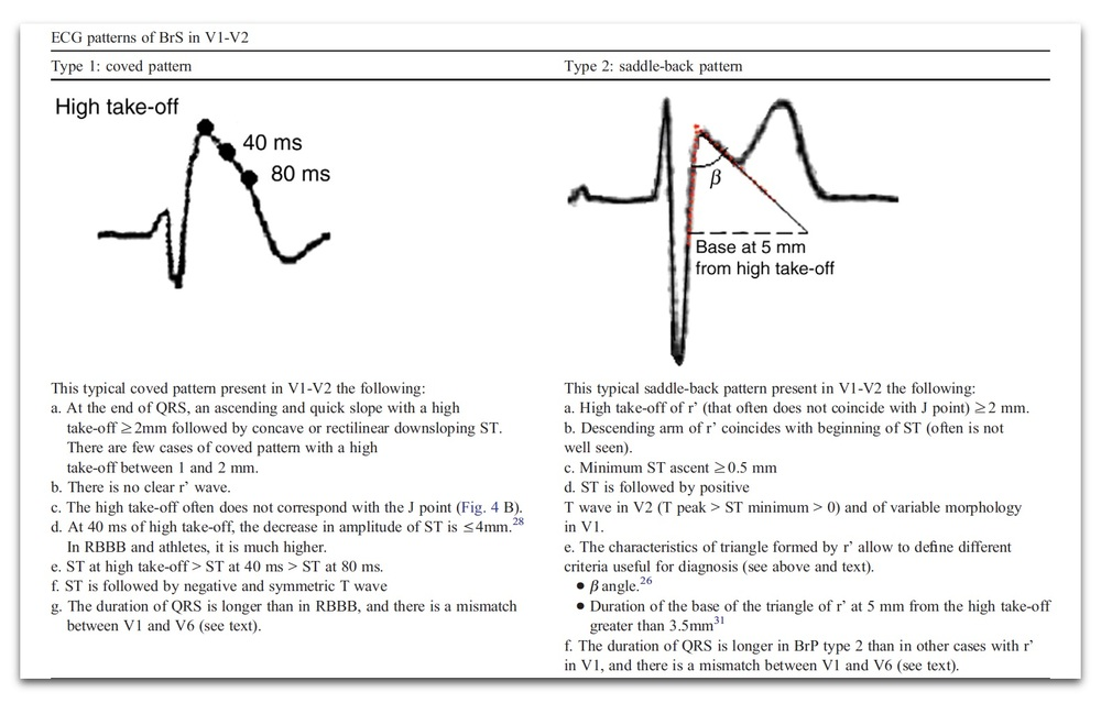 Figure 4 Comparison of the ECG changes in V1 and V2 in Brugada Type 1 and in Brugada Type 2 (J Electrocardiol. 2012; 45: 433–442)