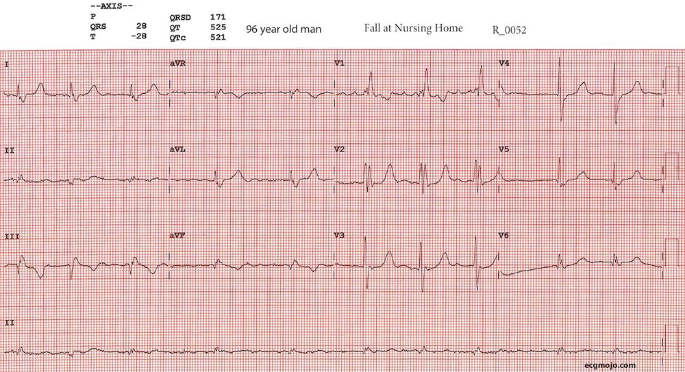 Figure 3 shows the 12 lead ECG of this patient