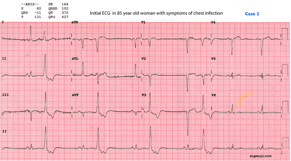 Figure 8: This is the initial ECG of a 85 year old woman with a chest infection