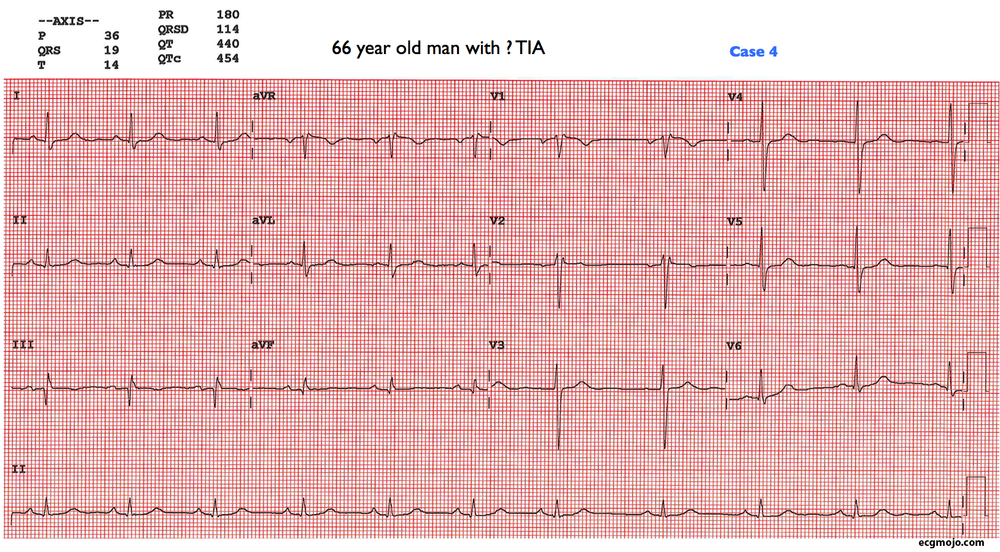 Figure 10: This is the ECG of a 66 year old man with a possible transient cerebral ischaemic event