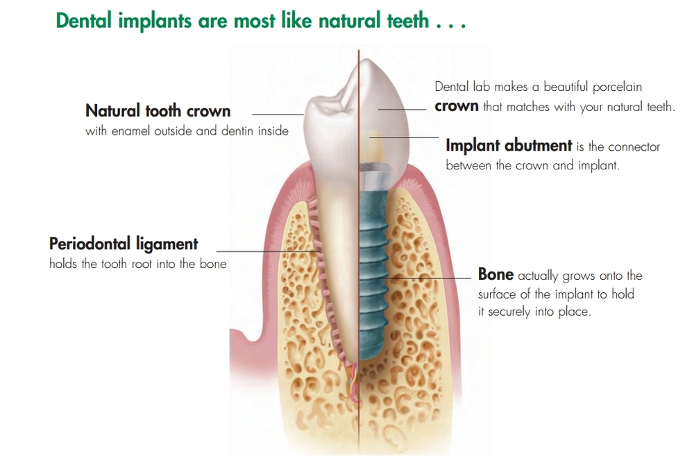 dental implants bondi.jpg
