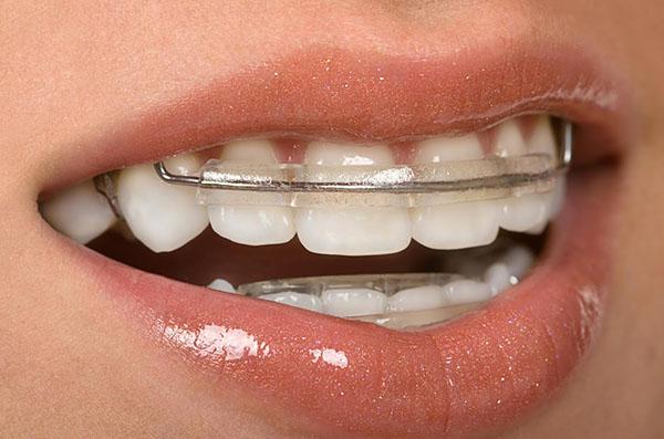 Inman-Aligner-Q1-Dental-Dentist-Melbourne.jpg