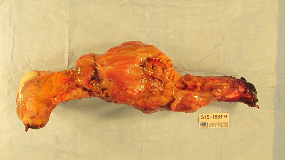 Femur bone avec le tumor