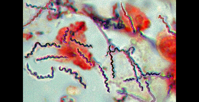 Borrelia Bacteria