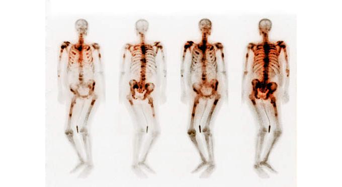 Bone Scans