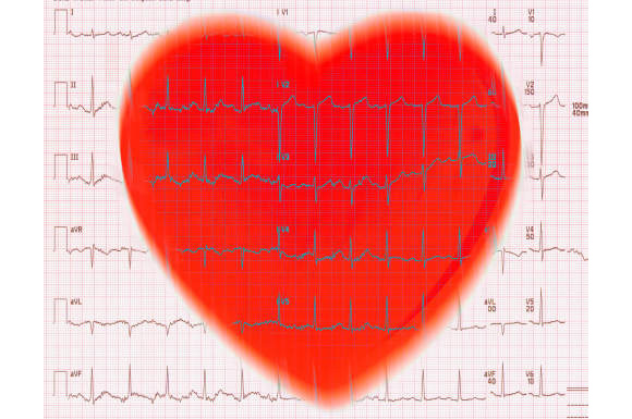 Heart and EKG Reading - BF5401 ©George Mattei/Science Source