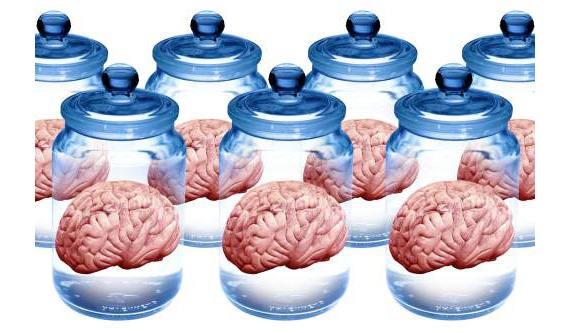 Preserved brains, artwork - SK7929 ©Victor de Schwanberg/Science Source