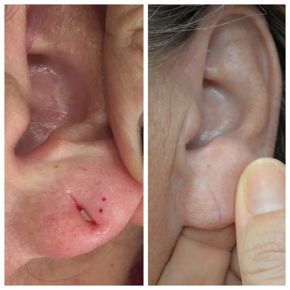 Piercing Hole Removal Northern Skin Studio