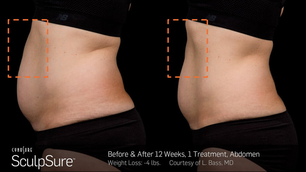 12 weeks after SculpSure® session