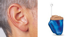 Completely-in-the-Canal Hearing Aid (CIC)