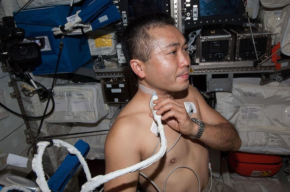 For small populations, such as astronauts, it might be hard to be statistically confident of the results of some medical experiments.   NASA/Wikimedia Commons  (public domain)