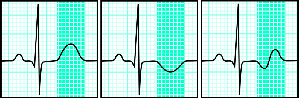 A normal T-wave (left panel) on an electrocardiogram. An inverted (middle) or biphasic (right) T-wave may indicate Wellens' syndrome.   Bron766/Wikimedia Commons  (CC BY-SA 3.0);  Bron766/Wikimedia Commons  (CC BY-SA 3.0);  Bron766/Wikimedia Commons  (CC BY-SA 3.0)