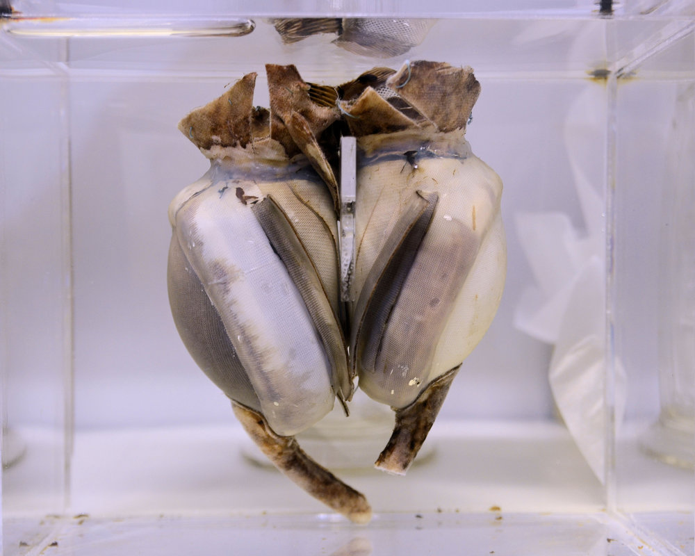 Original prototype of the Liotta-Cooley artificial heart, which spent 64 hours inside a patient.   Karon Flage/Flickr  (CC BY 2.0)