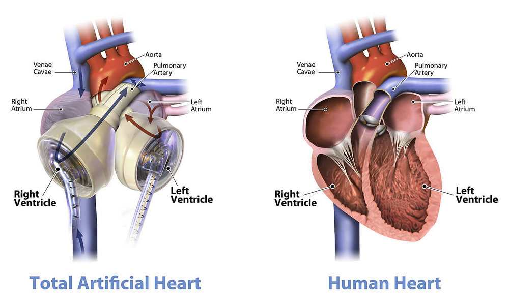 The Syncardia (left) mimics the pump action of a real heart (right).   SynCardia Systems, Inc./Wikimedia Commons  (CC BY-SA 3.0)