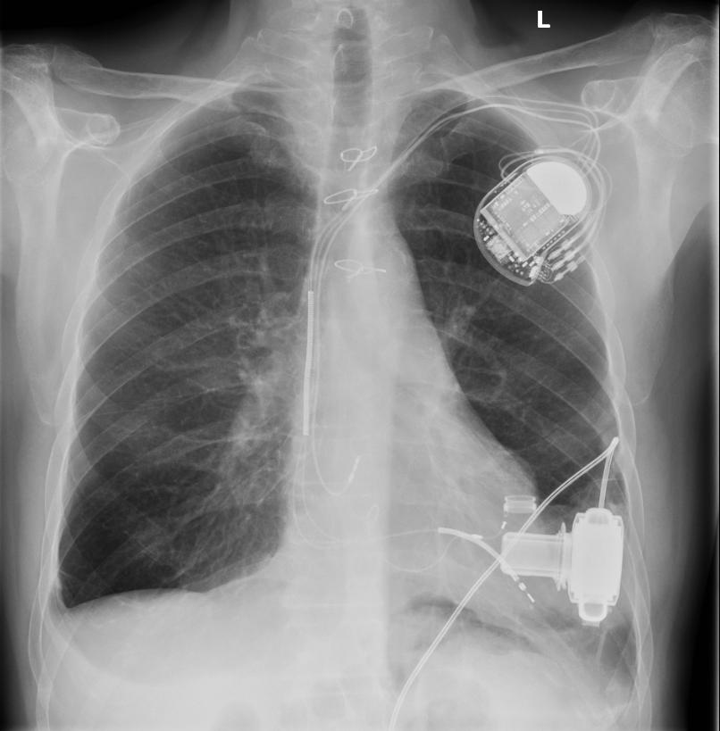This X-ray shows the different components of a full, mechanical heart. Artificial hearts, rather than being able to harness your own energy, generally need to be able to connect to some sort of external power supply.   7asmin/Wikimedia Commons  (CC BY-SA 3.0)