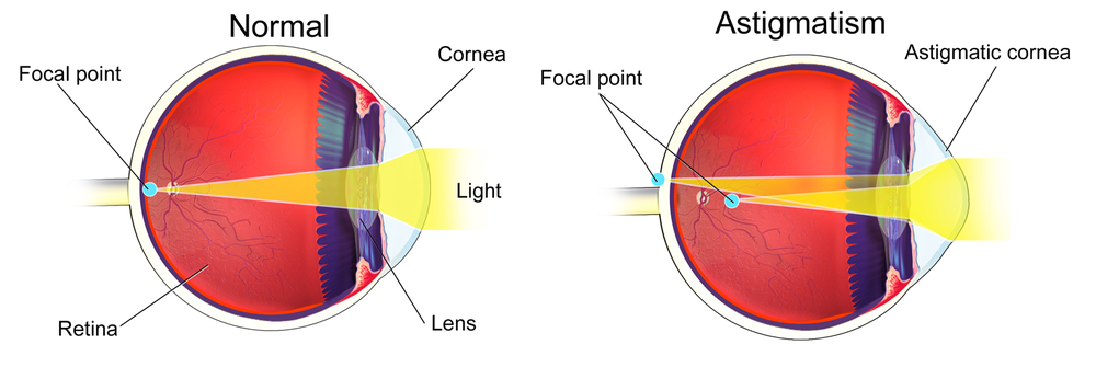 A normal (left) and astigmatic eye. In this example, the astigmatic lens cornea distorts the focal point of light before and behind the retina.  Modified from  BruceBlaus/Wikimedia Commons  (CC BY-SA 4.0)