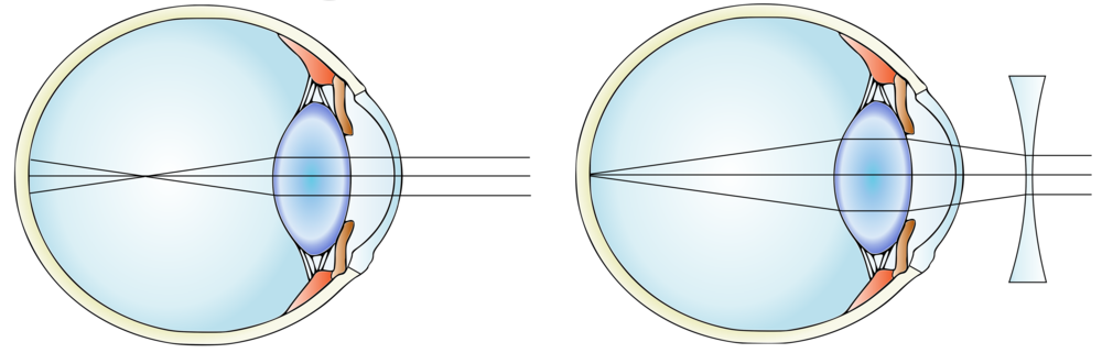 A myopic eye before (left) and after inserting a concave lens . Modified from  Gumenyuk I.S./Wikimedia Commons  (CC BY-SA 4.0)