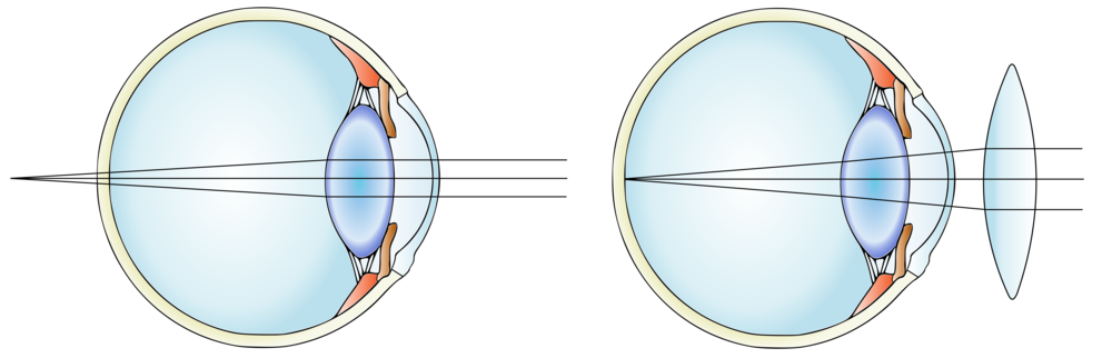 Hyperopic eye before (left) and after inserting a convex lens.  Modified from  Гуменюк И.С./Wikimedia Commons  (CC BY-SA 4.0)