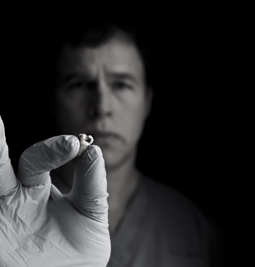 Dr. Michael Zuk with John Lennon's tooth.