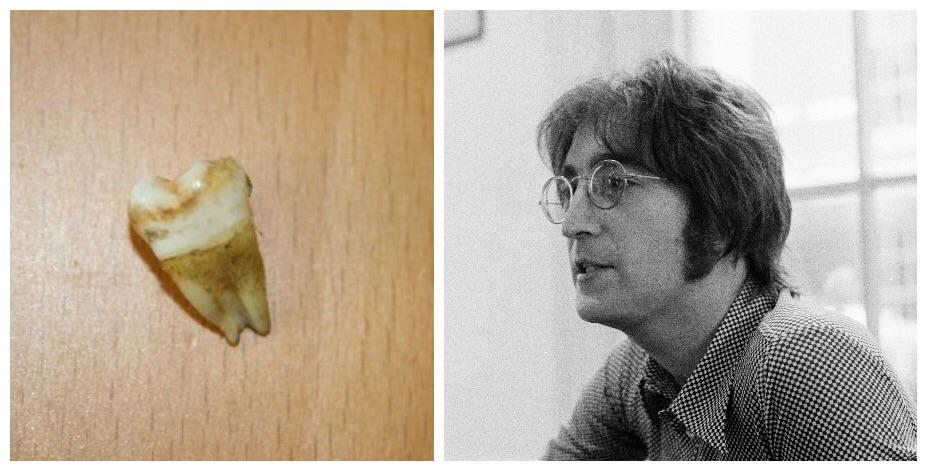 Lennon's tooth and John Lennon, 1971.