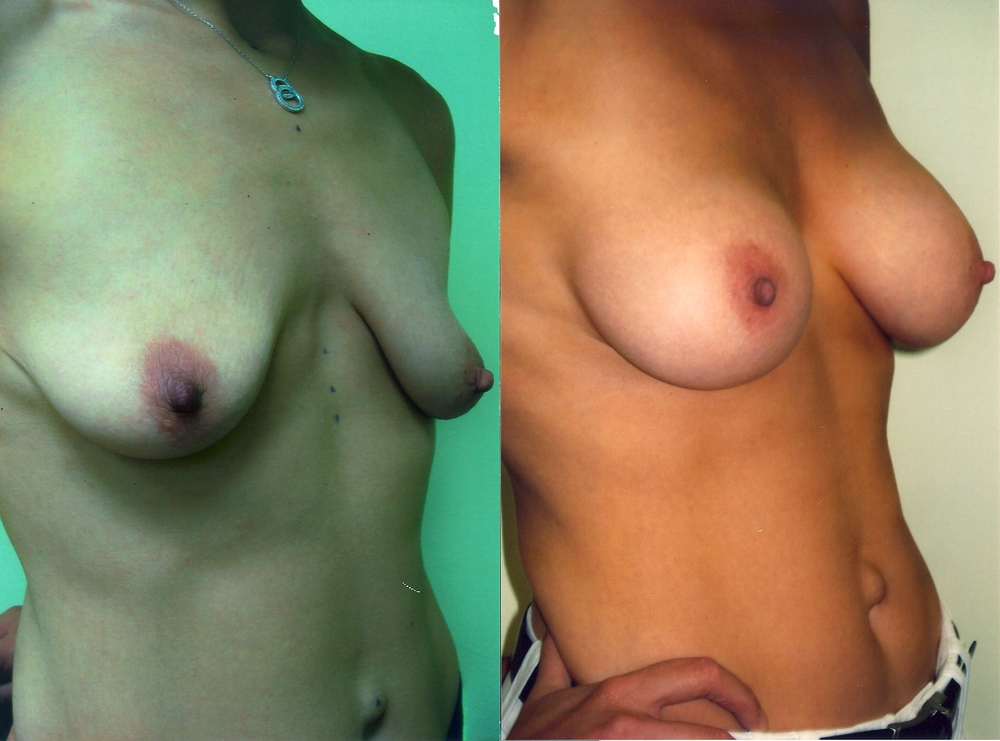 BreastAugmentation2.jpg