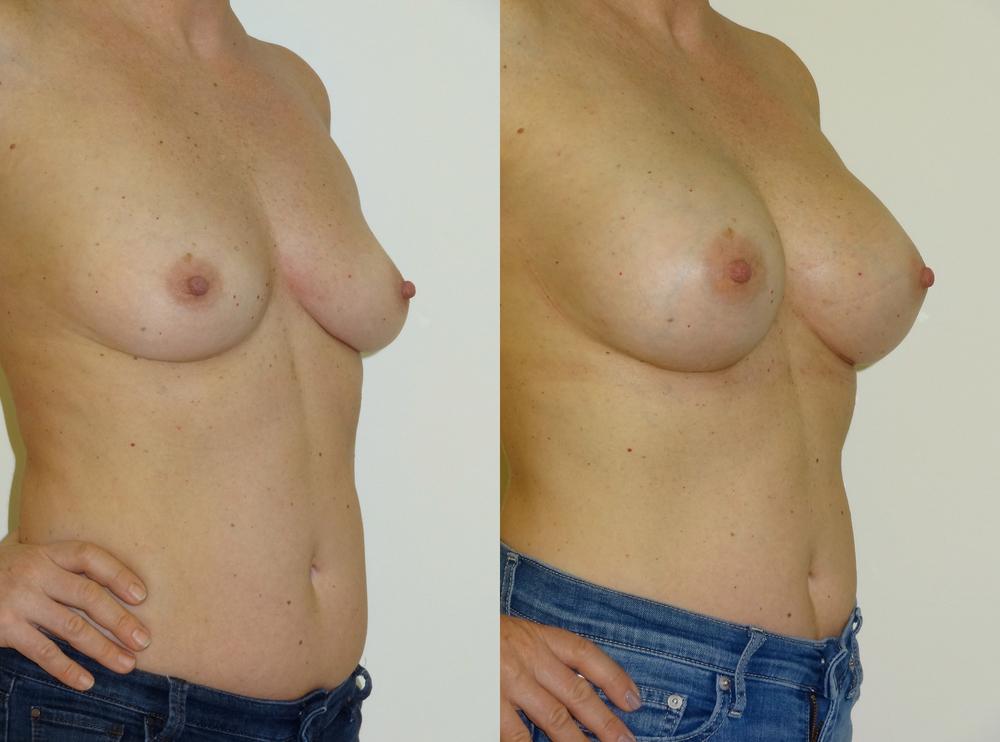 breast5.jpg