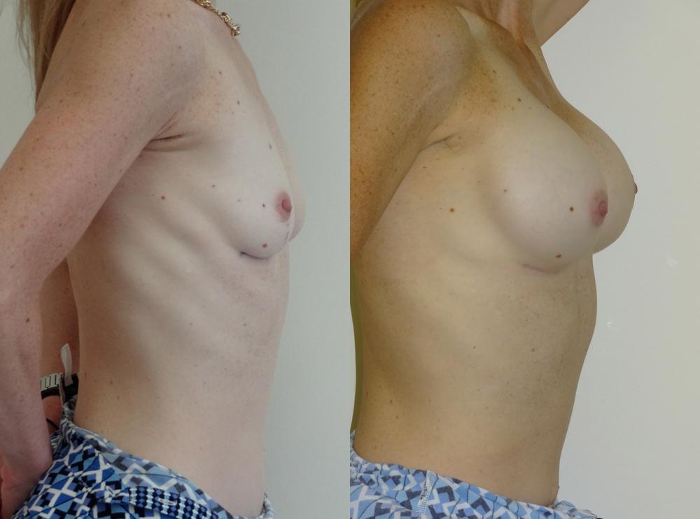breast9.jpg