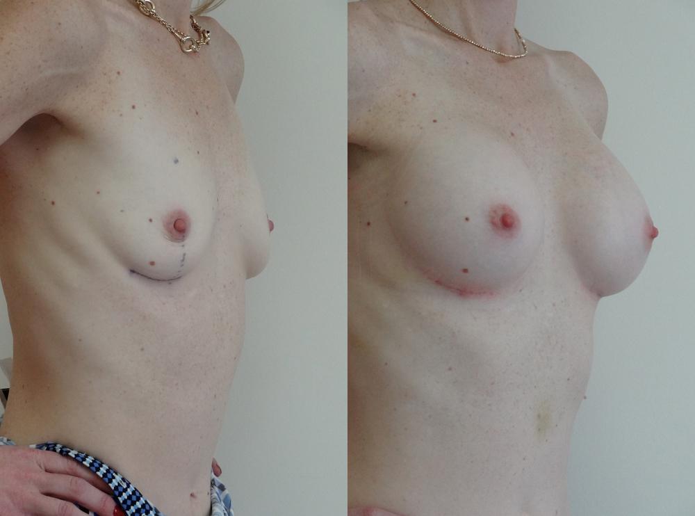 breast10.jpg