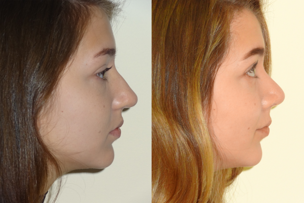 BeforeAfterNose5leftAngle.png