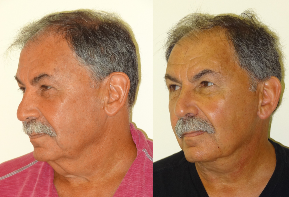 BeforeAfterKhouryFacelift5leftAngle.png