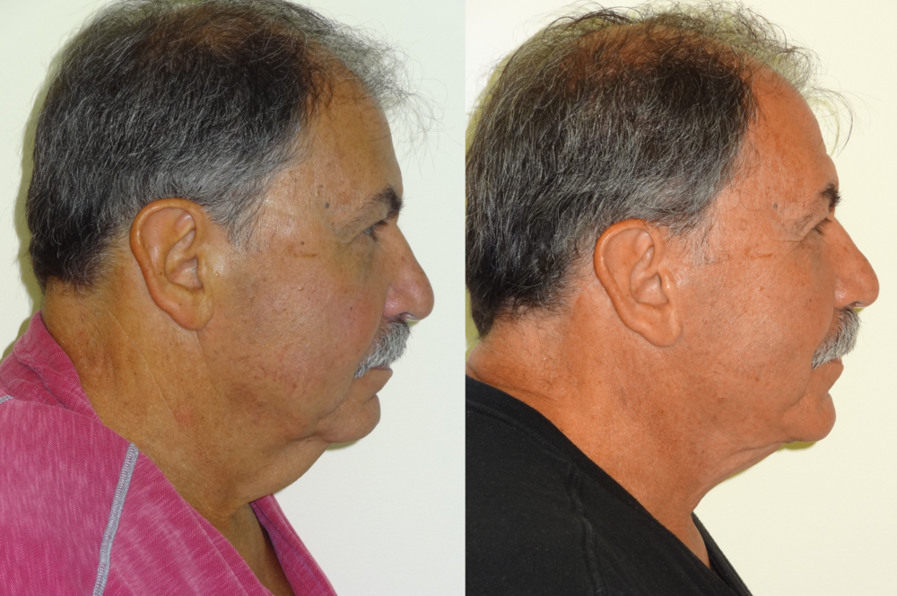BeforeAfterKhouryFacelift5right.png