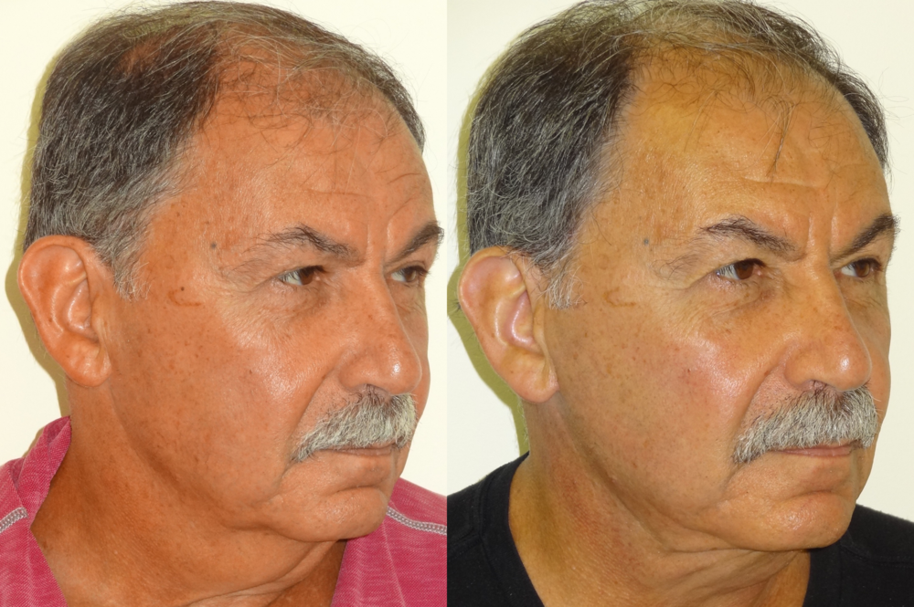 BeforeAfterKhouryFacelift5rightAngle.png
