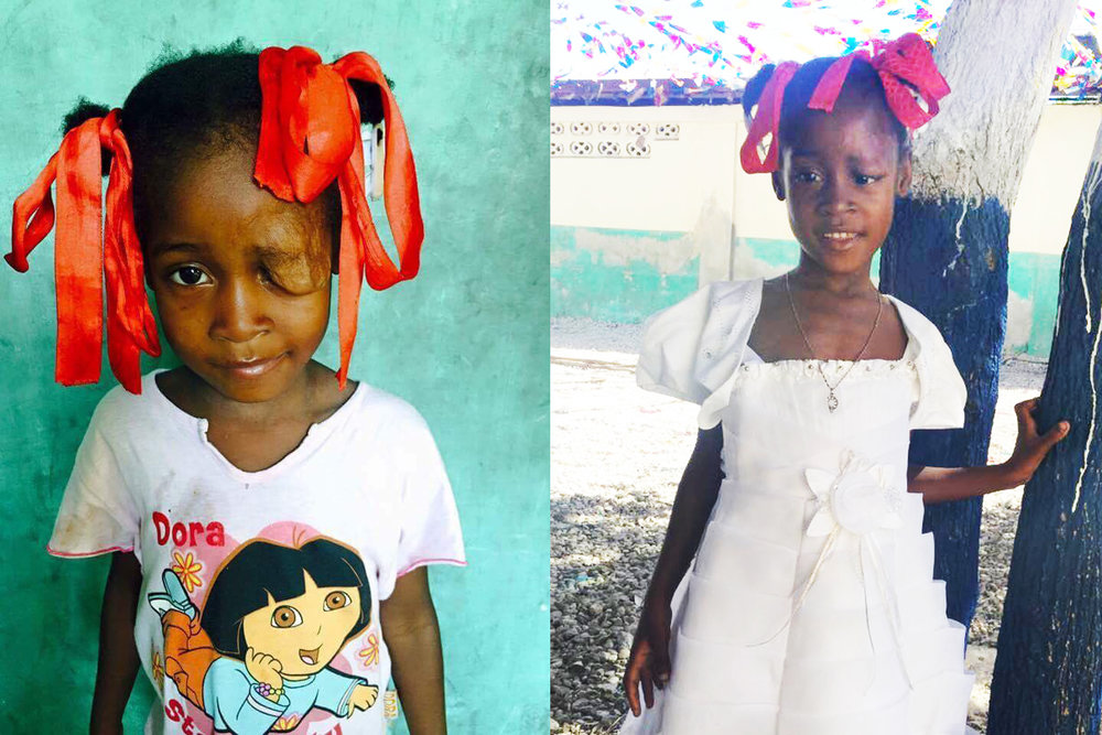 Taina's surgery was a success! - She is so beautiful! Thank you Java Relief customers and donors!With all of your help, Java Relief was able to send $2,500 to Don Shire Ministries to help with the cost of Taina's surgery. She is from the poorest slum in the Western Hemisphere.This surgery has changed her life and giving her hope for the future.God bless you!
