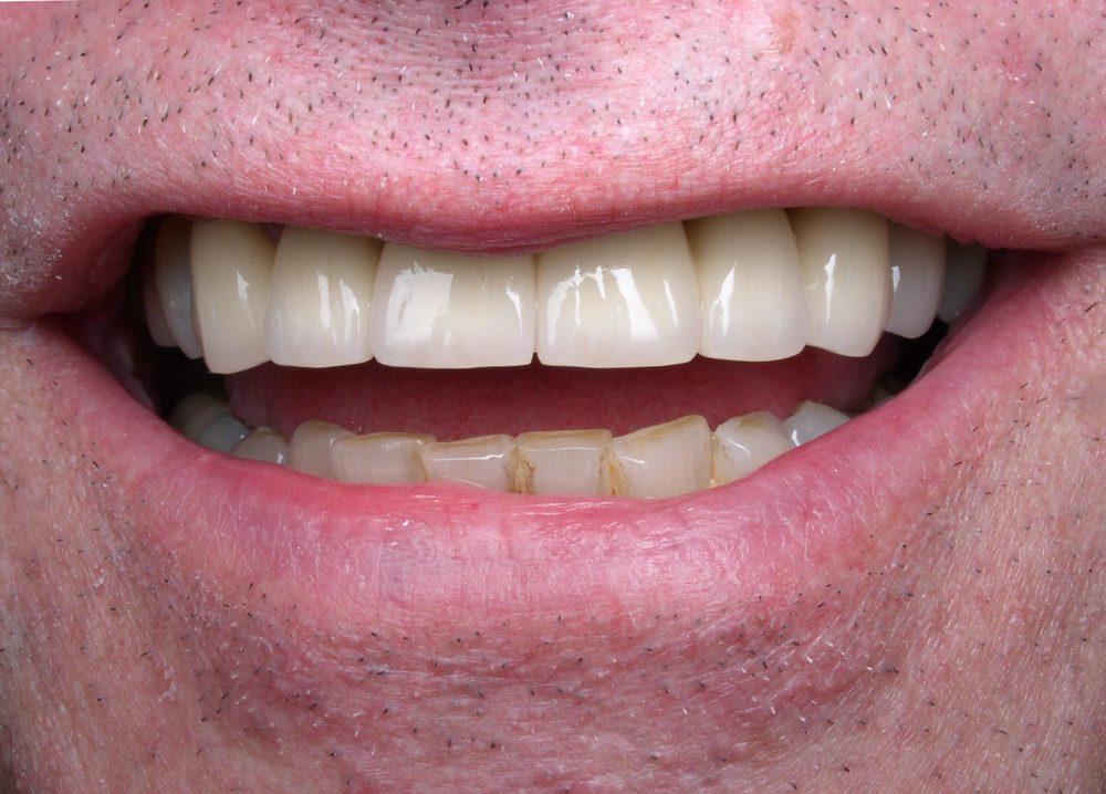 Post-op Smile.JPG