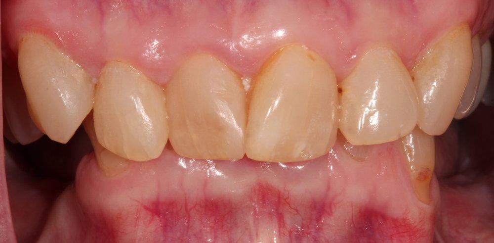 Frontal Bite (3).JPG