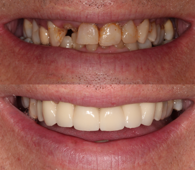 Restoring a smile can change someone's life - not only aesthetically, but also by eliminating pain and discomfort.