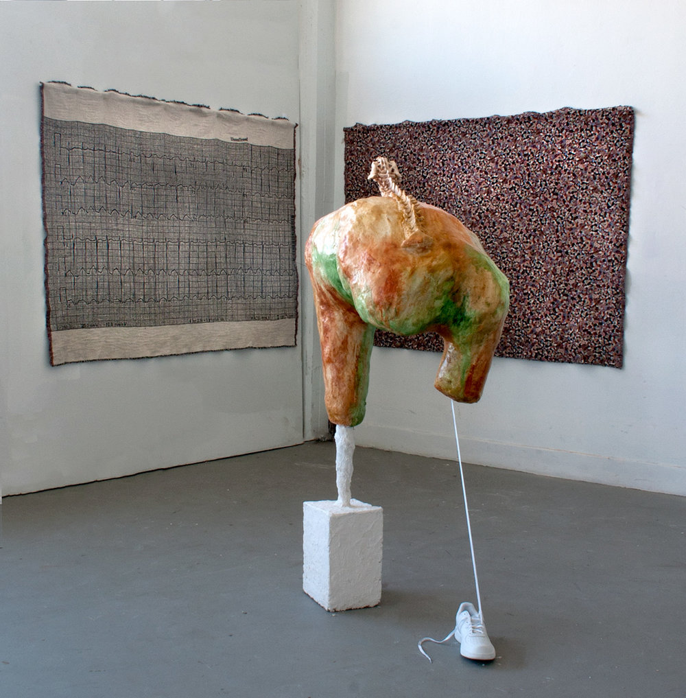 vulgaris-installation.jpg