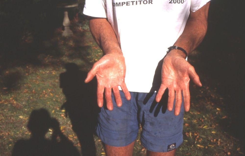 Bill's hands