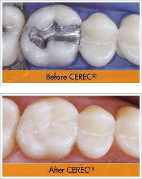 CEREC-Before-and-After.jpg